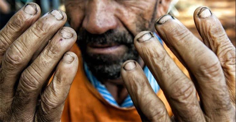 Reforma trabalhista vai dificultar combate ao trabalho escravo